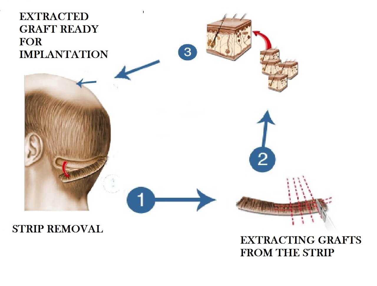 FUT (Follicular Unit Transplantation) Technique used in Delhi