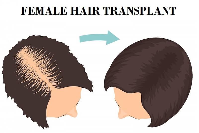 Female Hair Transplant cost in Delhi