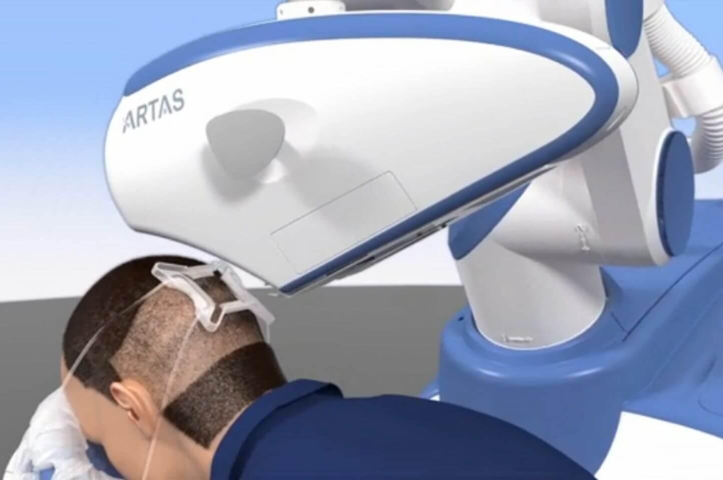 Robotic Hair Transplant Technique used in Delhi