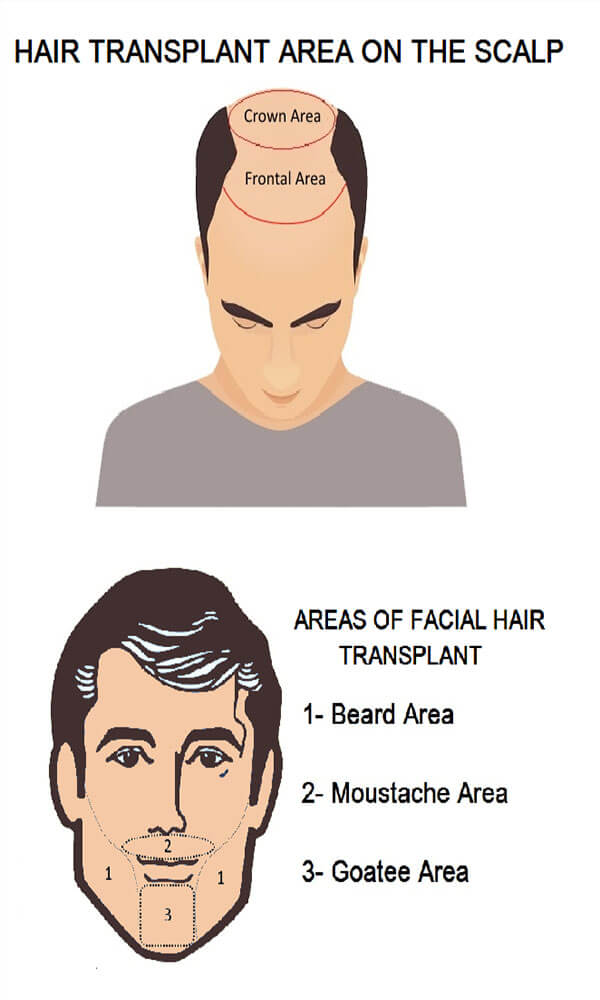 Area of Hairt Transplant