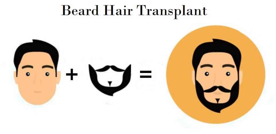 Beard Transplant in Delhi