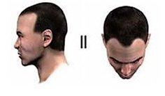 Baldness Level 2