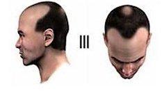 Baldness Level 3