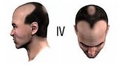 Baldness Level 4