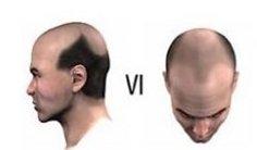 Baldness Level 6