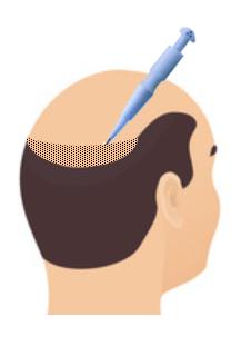 DHI hair transplant in Mumbai