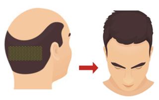 FUE hair transplant in Mumbai