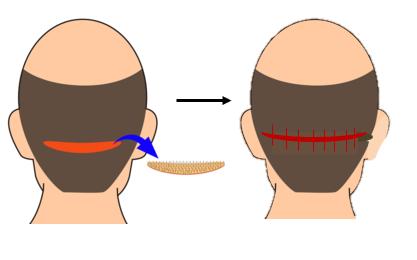 FUT hair transplant in Mumbai