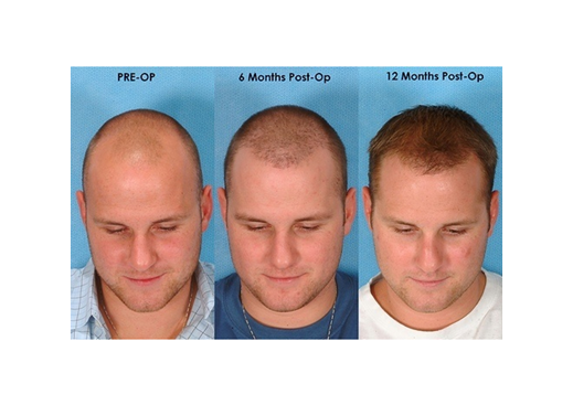 Desired Result After Hair Transplant