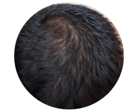 6 Months after PRP hair treatment