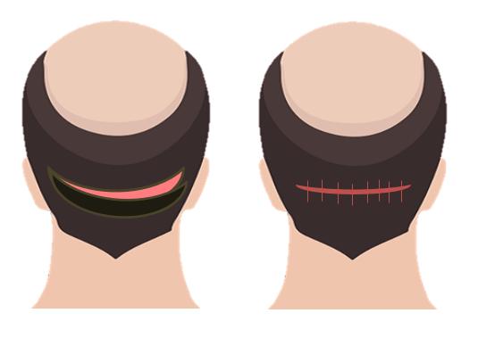 FUT hair transplant (Follicular Unit Transplant)