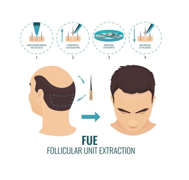 FUE (Follicular Unit Extraction)