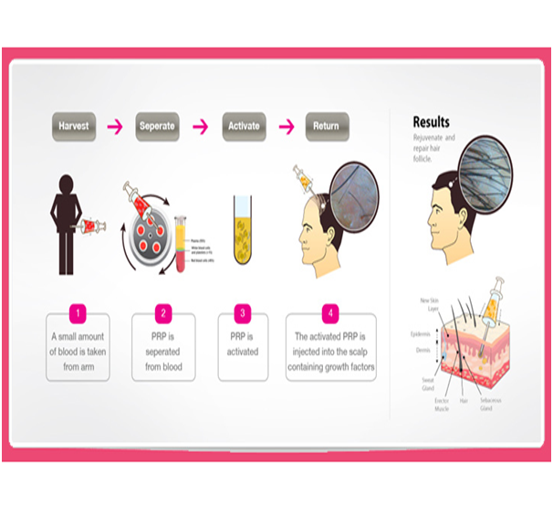 PRP (Platelet-rich Plasma) therapy