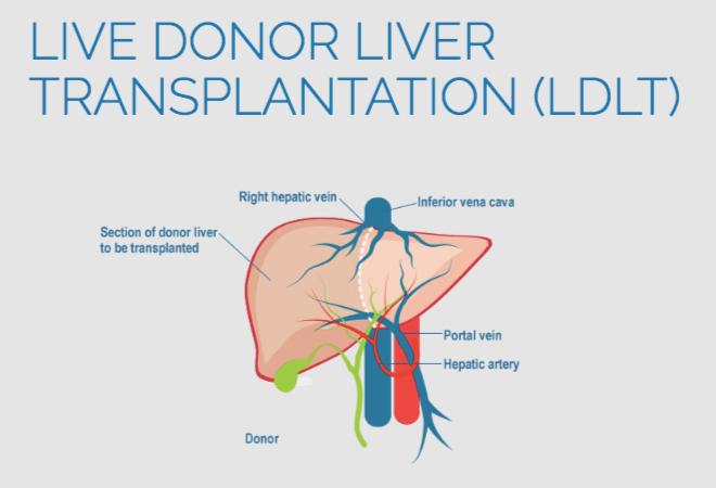 Living Donor LiverTransplant