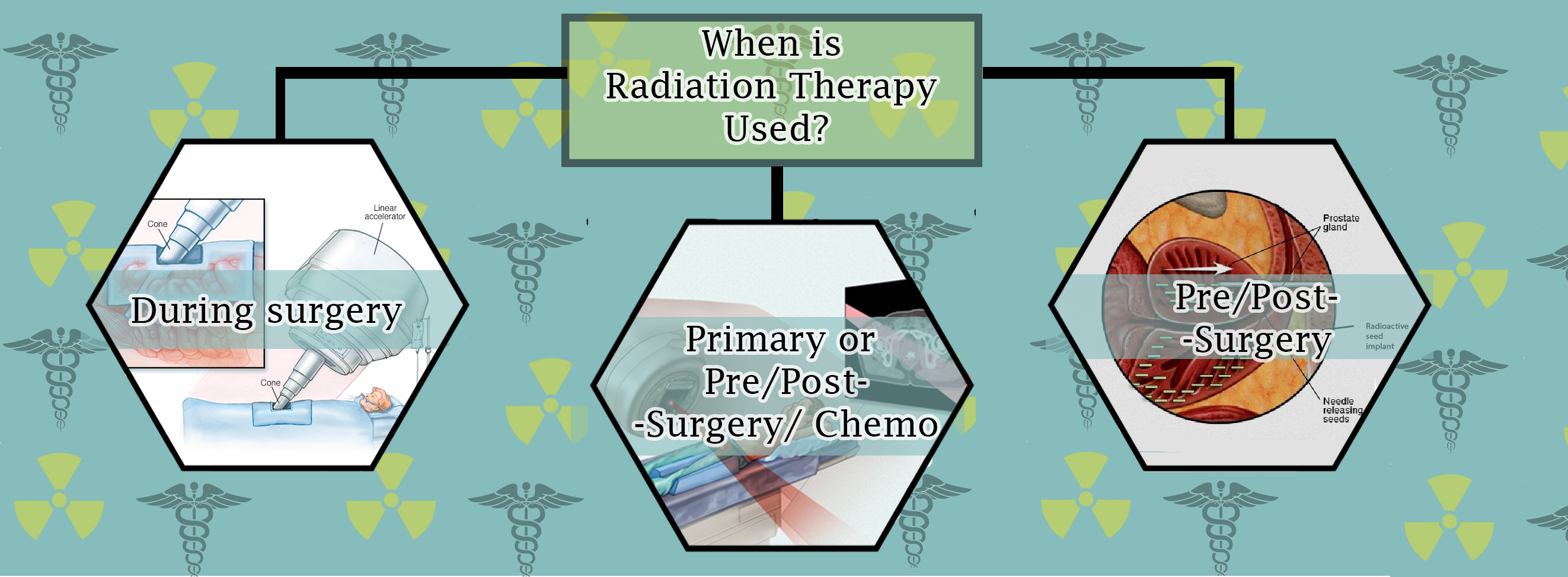 When is Radiation Therapy used?